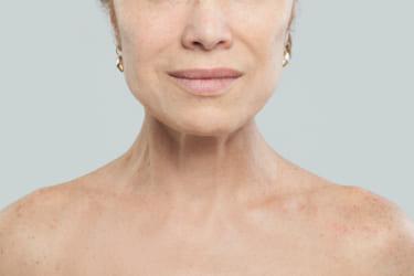 老化した女性の肌